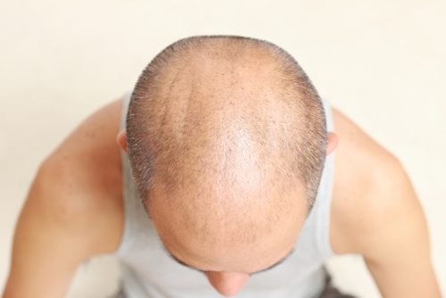 thinning-hair-treatment