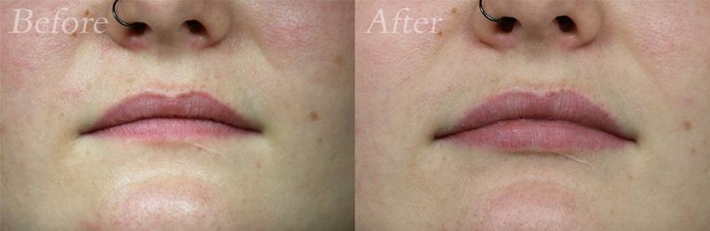Lip Filler Patient 3