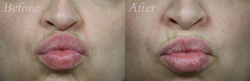 Lip Filler Patient 2