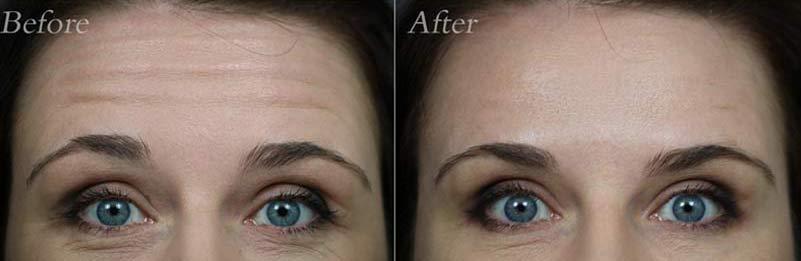 Botox/Dysport Patient 3