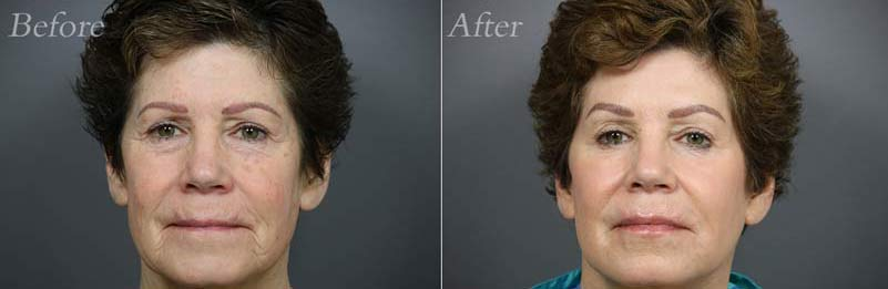 Face Lift Patient 1