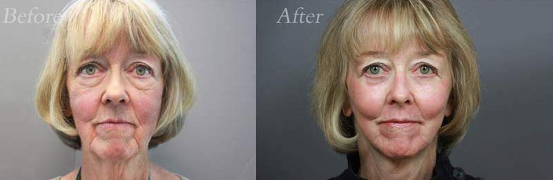 Face Lift Patient 2