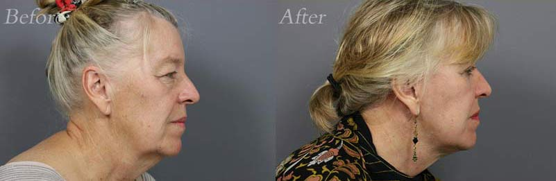 Face Lift Patient 3