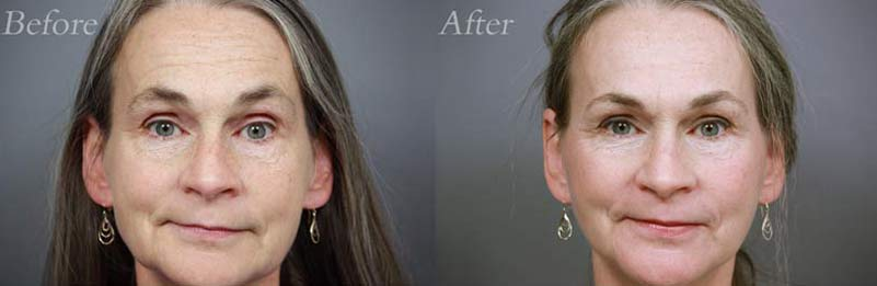 Face Lift Patient 4