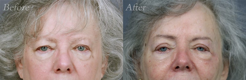 Brow Lift patient 2