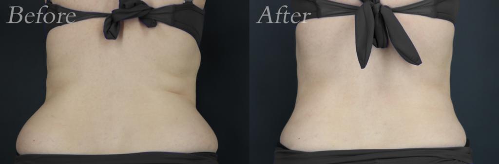 Liposuction patient 2