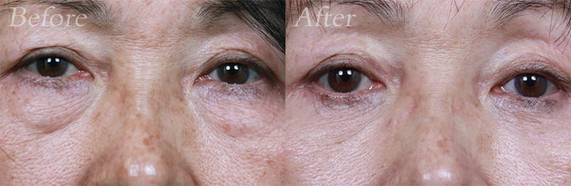 Lower-Blepharoplasty patient 1