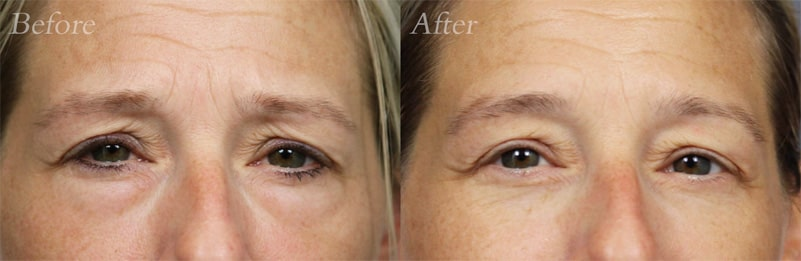 Lower-Blepharoplasty patient 2
