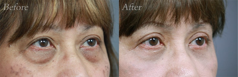 Lower-Blepharoplasty patient 4