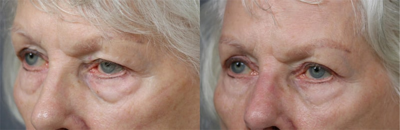 Quad Blepharoplasty patient 10