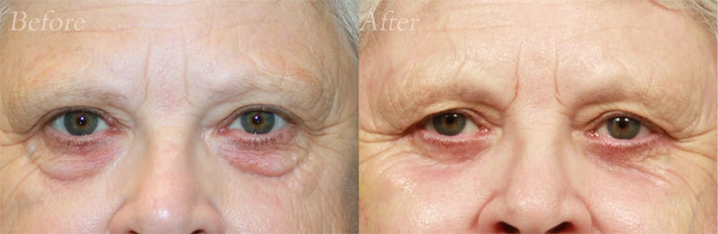 Quad Blepharoplasty patient 3