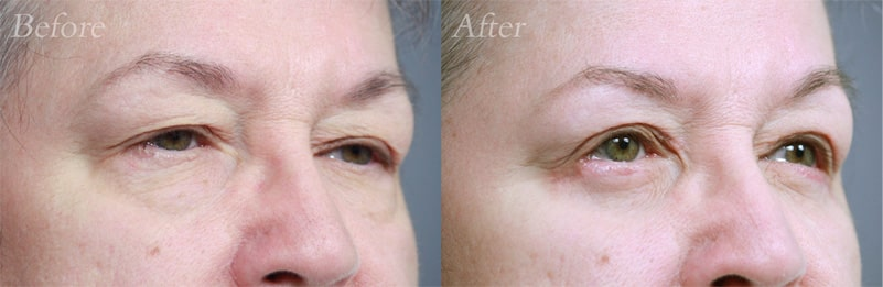 Quad Blepharoplasty patient 4