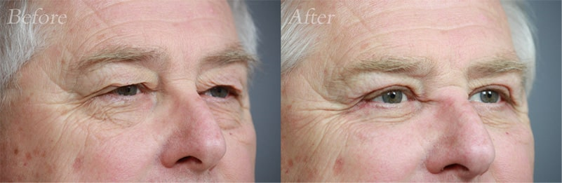 Quad Blepharoplasty patient 5