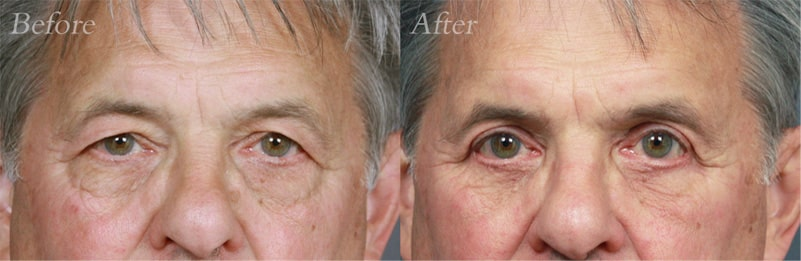 Quad Blepharoplasty patient 6