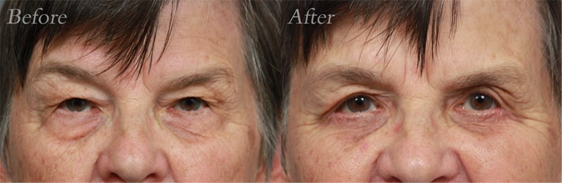 Quad Blepharoplasty patient 7