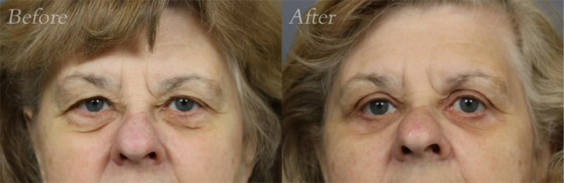 Quad Blepharoplasty patient 8