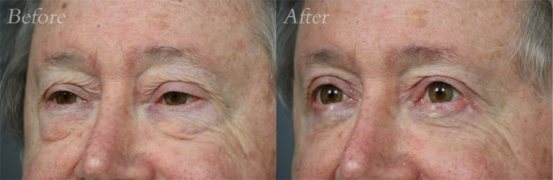 Quad Blepharoplasty patient 9