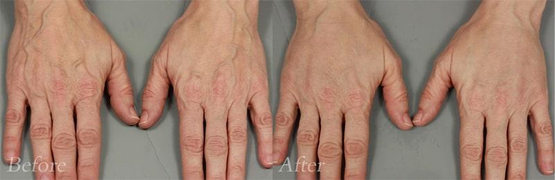 Filler Hands patient 1