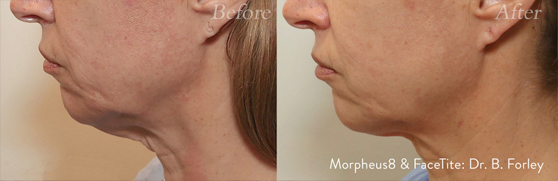 Morpheus8 patient 5