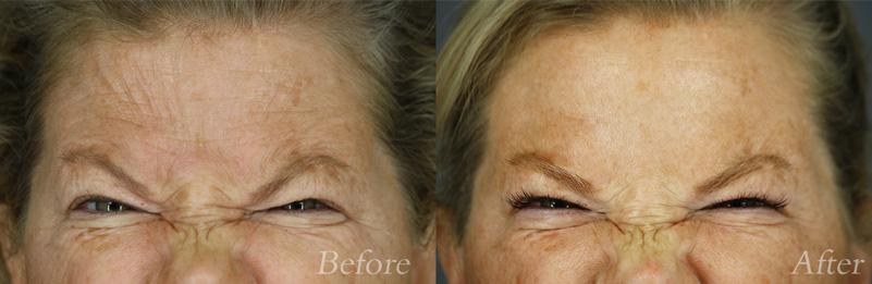 Botox/Dysport Patient 4