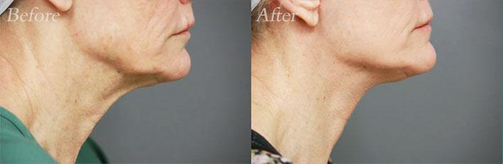 Face Lift & Laser Resurfacing