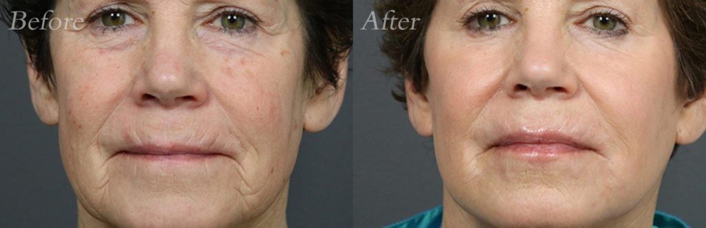 Laser Skin Resurfacing Patient1