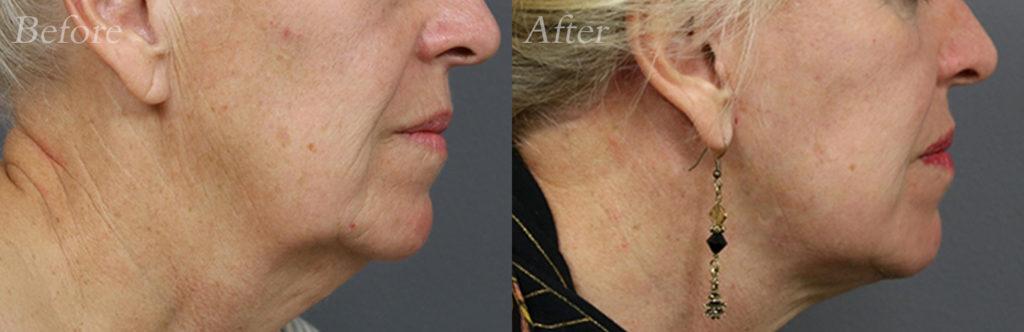Laser Skin Resurfacing Patient3