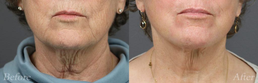 Laser Skin Resurfacing Patient4