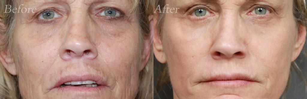 Laser Skin Resurfacing Patient6