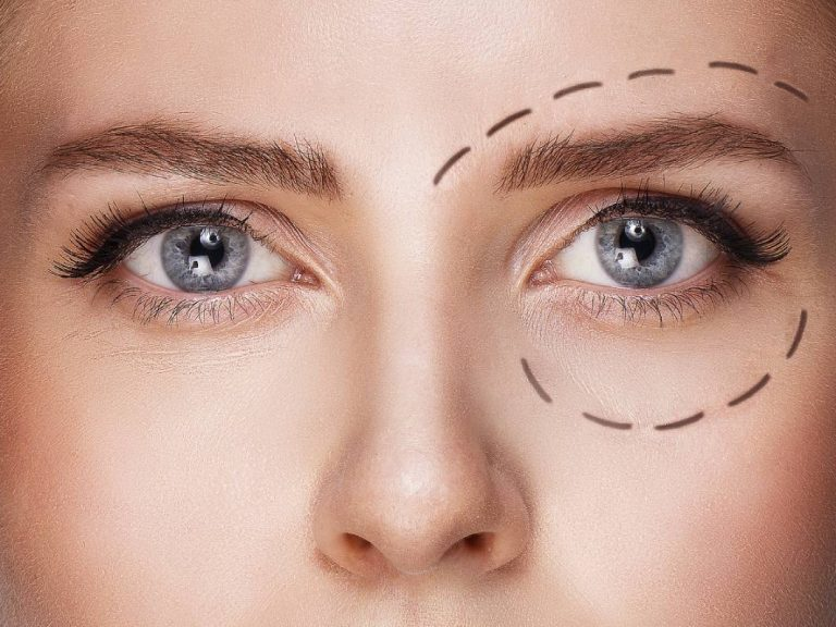 close up of woman's eyes with dotted line outlining one eye