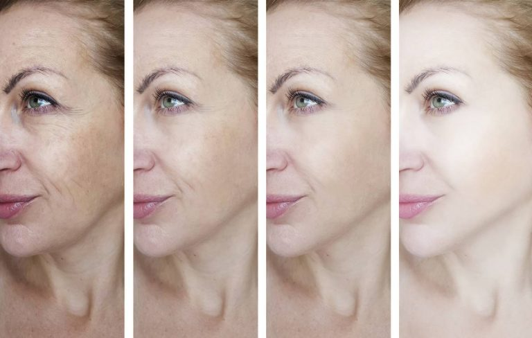 before and after progression of female getting cosmetic procedure