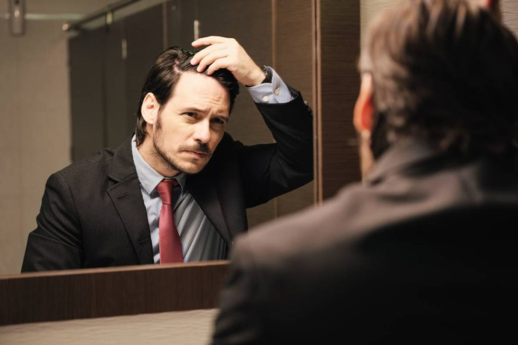 Man feeling embarassed about hair loss.