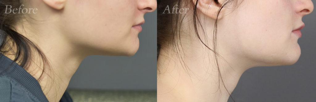 Jaw Filler Patient 1